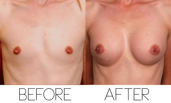 Breast augmentation in salt lake city ut