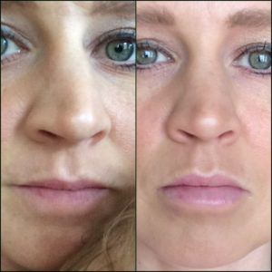 Dr. Kjar's Patient - Before and After with Juvederm