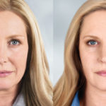 What Injectable Is Right For My Age?